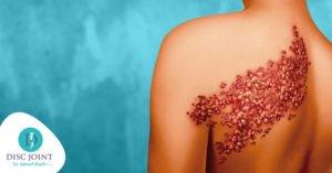 أهم أعراض و طرق علاج الحزام الناري (الم ما بعد فيروس هربس)